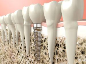 Implant dentaire - Cabinet dentaire des Marches du Velay - Monistrol-sur-Loire